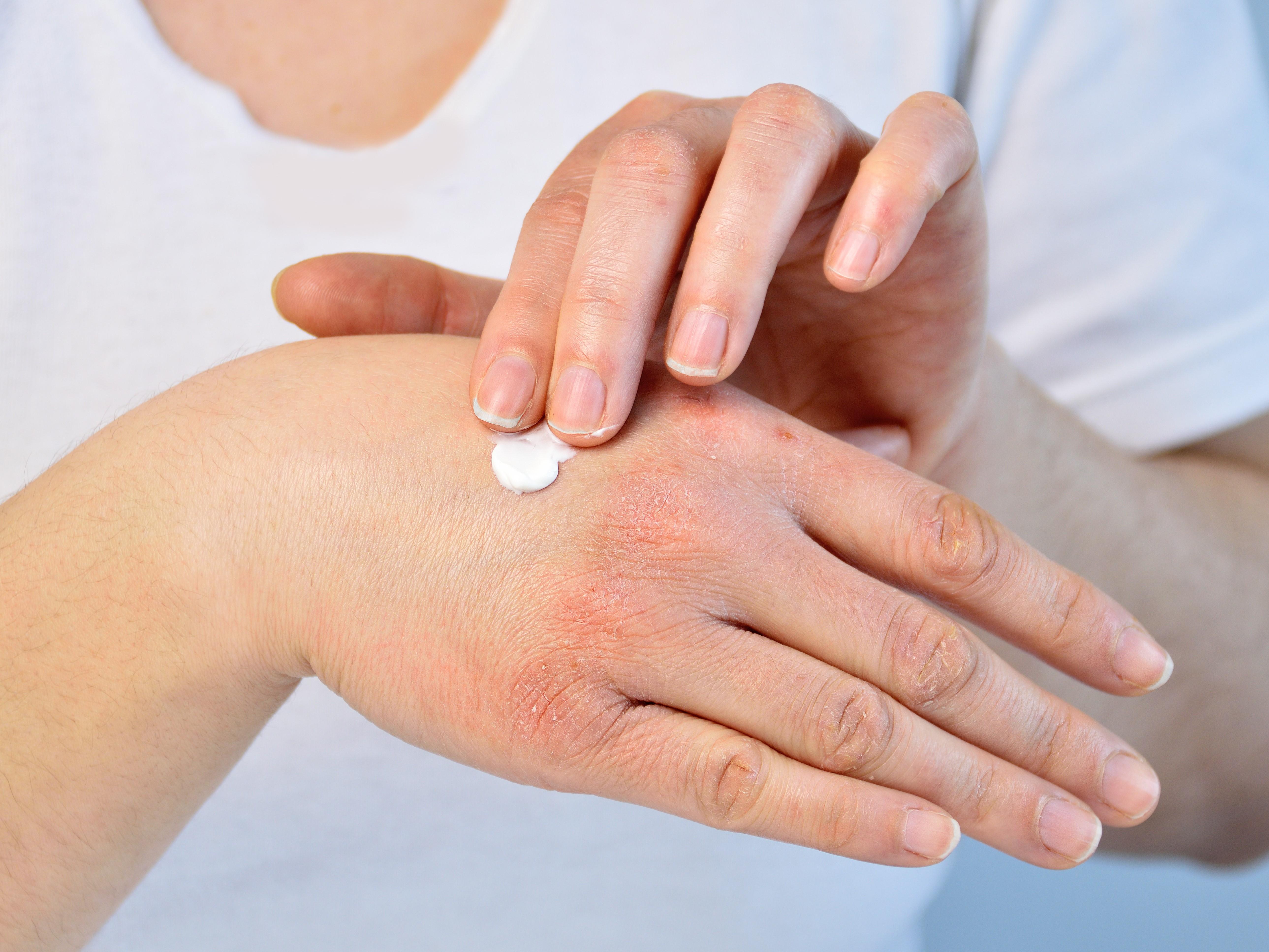 が の 付け根 指 痛い の 手